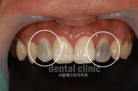 실활치 치아미백 전후 증례