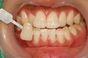 치아미백 전후 증례